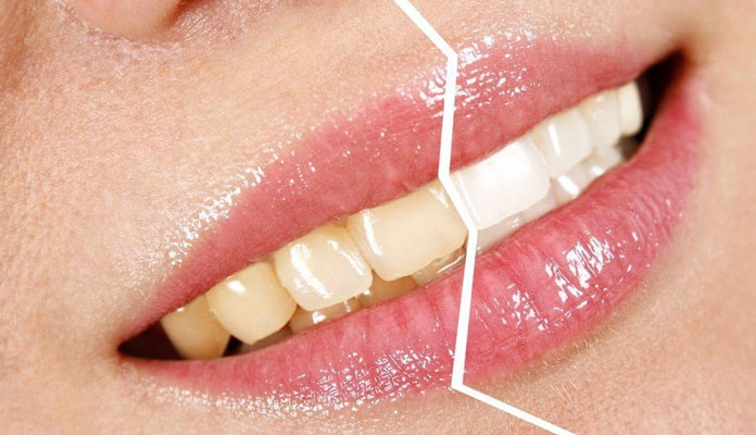 healthoftheday baking soda Dietary Changes Fruits Hydrogen Peroxide Oil Pulling Teeth Brushing 6 Simple Ways to Naturally Whiten Your Teeth